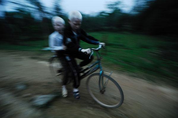 Tuy mắt kém nhưng trường ở xa nên hai em vẫn đèo nhau đi học bằng xe đạp, nhìn chiếc xe ngoằn ngoèo trên đường mà sợ, thật mừng vì hiện tại nó đã hỏng.