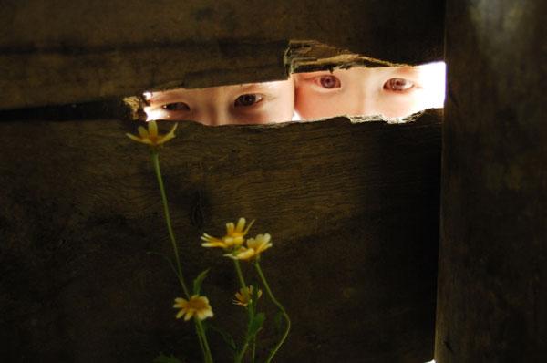 Mắt của Hùng màu xanh lam, mắt của Huy hơi có màu hồng.